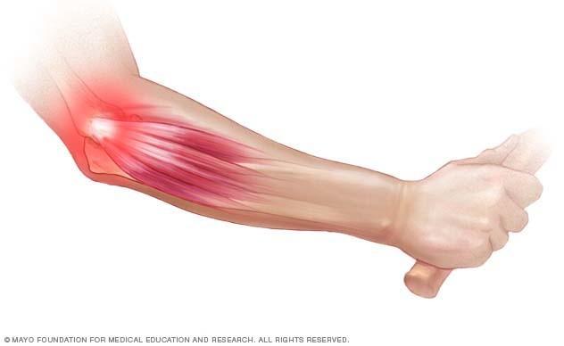 váll- és könyökízület osteoarthrosis kezelése)