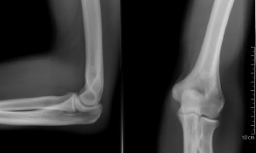ízületek deformáló osteoarthrosisának kezelése