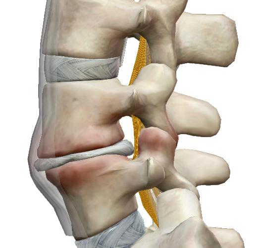ízületi fájdalom a gerinc miatt
