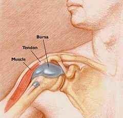 ízületi fájdalom bursitis)