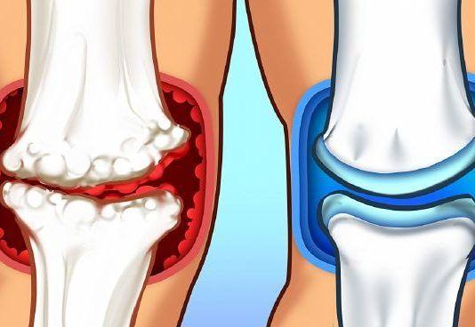 a térdízület artrózisa duzzadt és fáj minden ízület ropogásának és fájdalmának okai