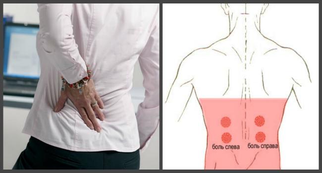 A csontritkulás hatékony gyógyszerei: a betegség kezelése és megelőzése - Osteochondrosis -