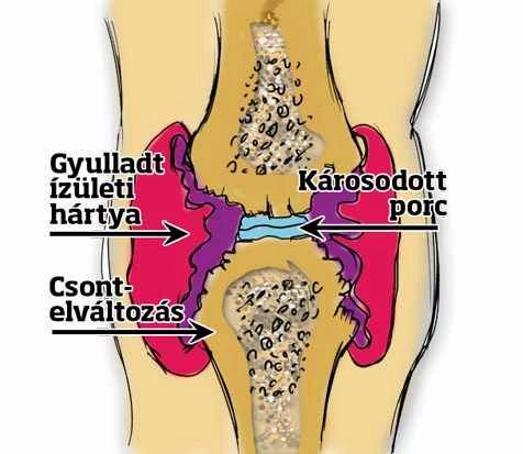a csípőízületek ízületi elváltozása)