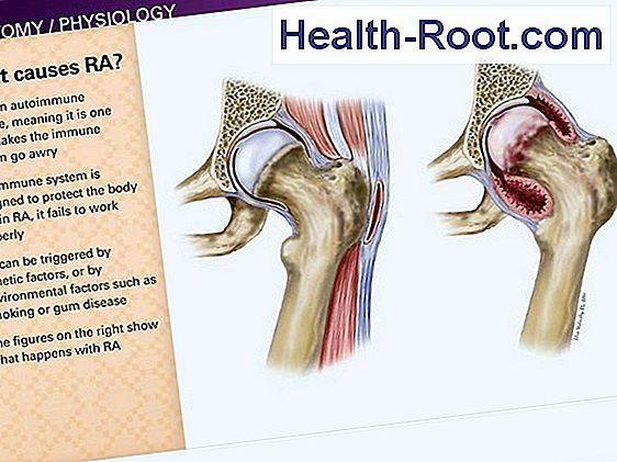 rheumatoid arthrosis kezelése