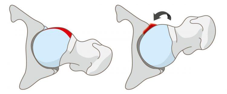 betegség és a csípőízületek kezelése)