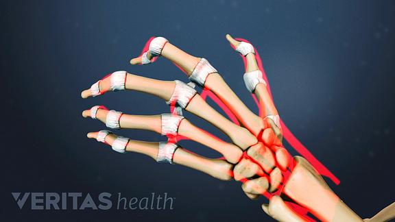 rheumatoid arthritis bursitis a könyökízületben értágító gyógyszerek cervicothoracicus osteochondrozishoz