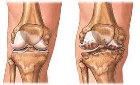 hogyan lehet meghatározni a térd artrózisát
