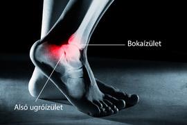 a bokaízület sérülései és törései)