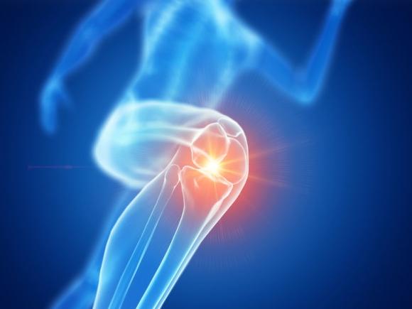 artrózis duzzadt térdkezelés