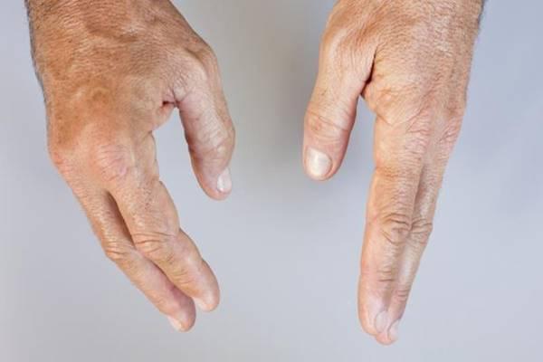 ujjízületi fájdalom és fizioterápia amikor az ízület megduzzad a kezén