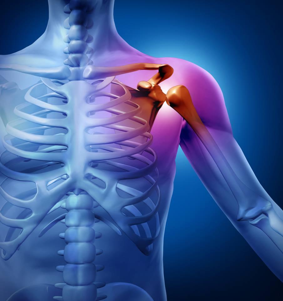 akupunktúra a vállízületek fájdalma miatt)