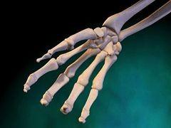 hogyan kezeljük a csonti és ízületi fájdalmakat