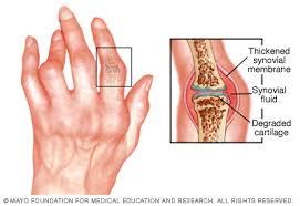 az egér ujjainak ízületei fájnak