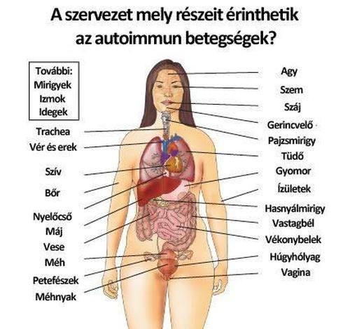 emberi ízületi betegségek)