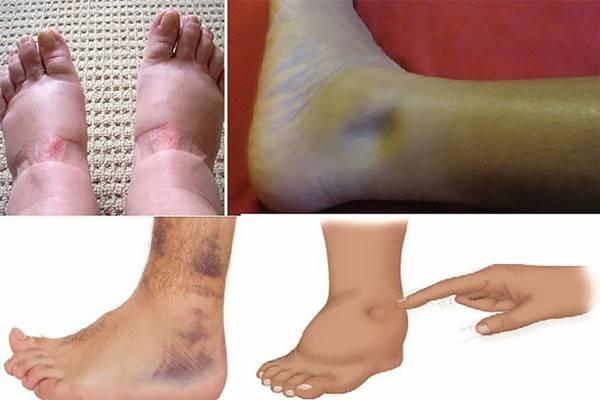 a duzzadt lábak kezelése)