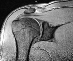 a vállízület deformáló artrózisa 1 fokos