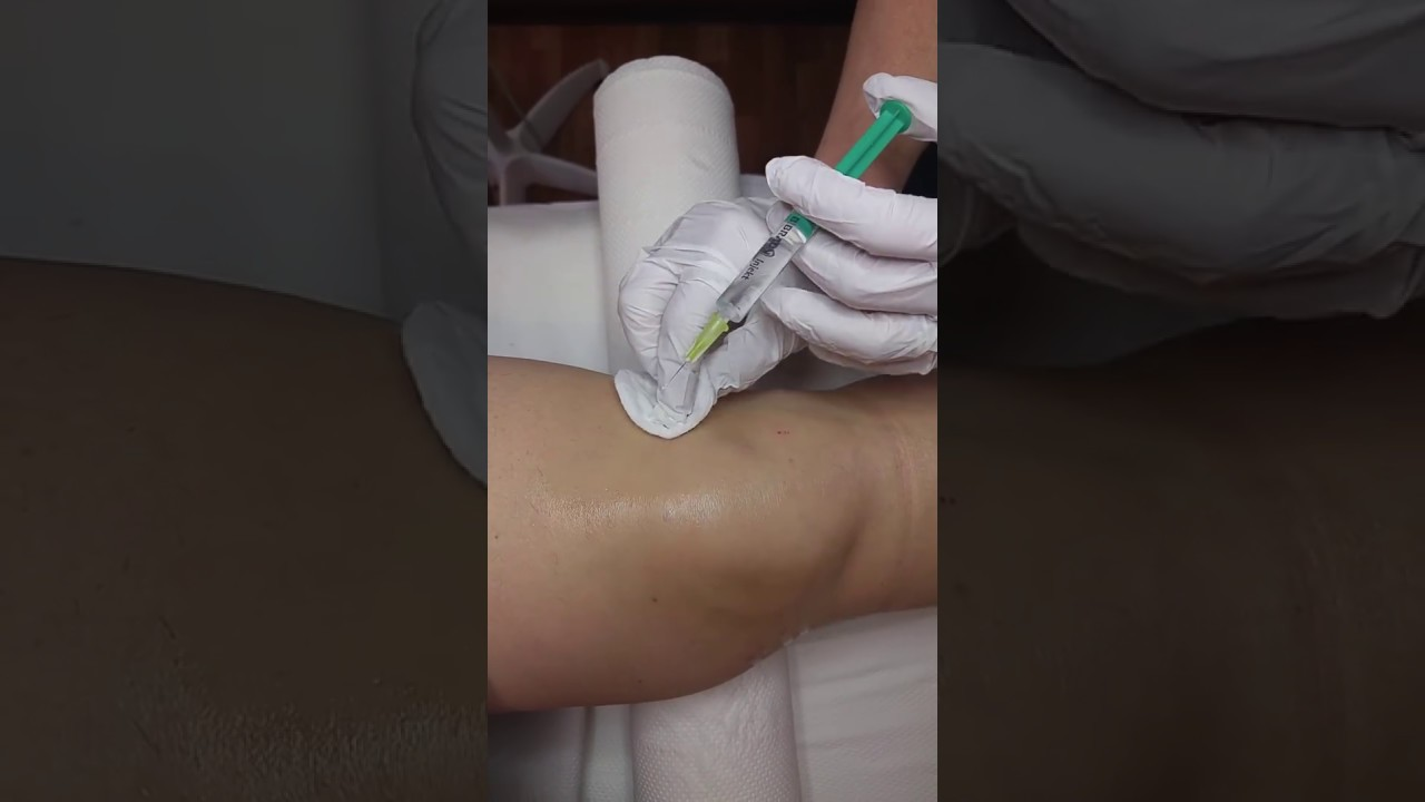 súlyos ízületi fájdalomkezelés csukló kalcit bursitis kezelés