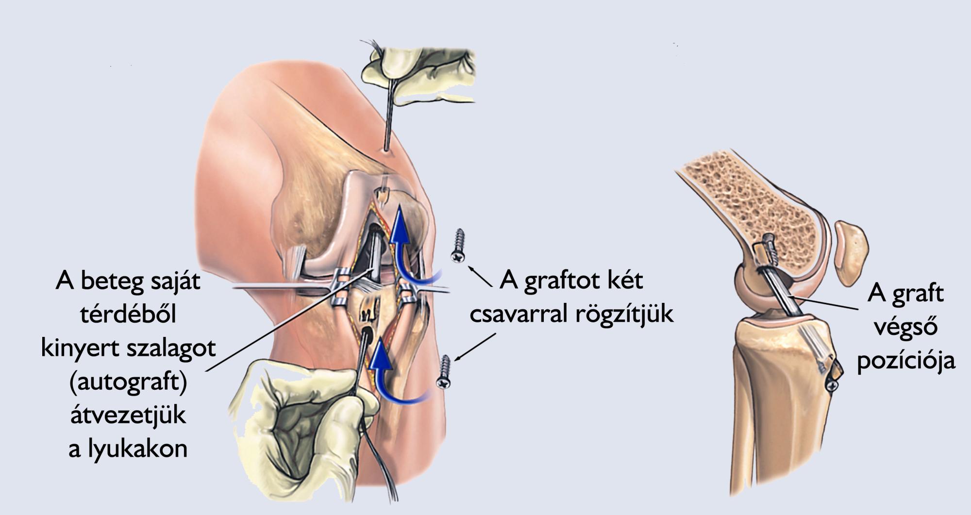 Elülső keresztszalag műtét