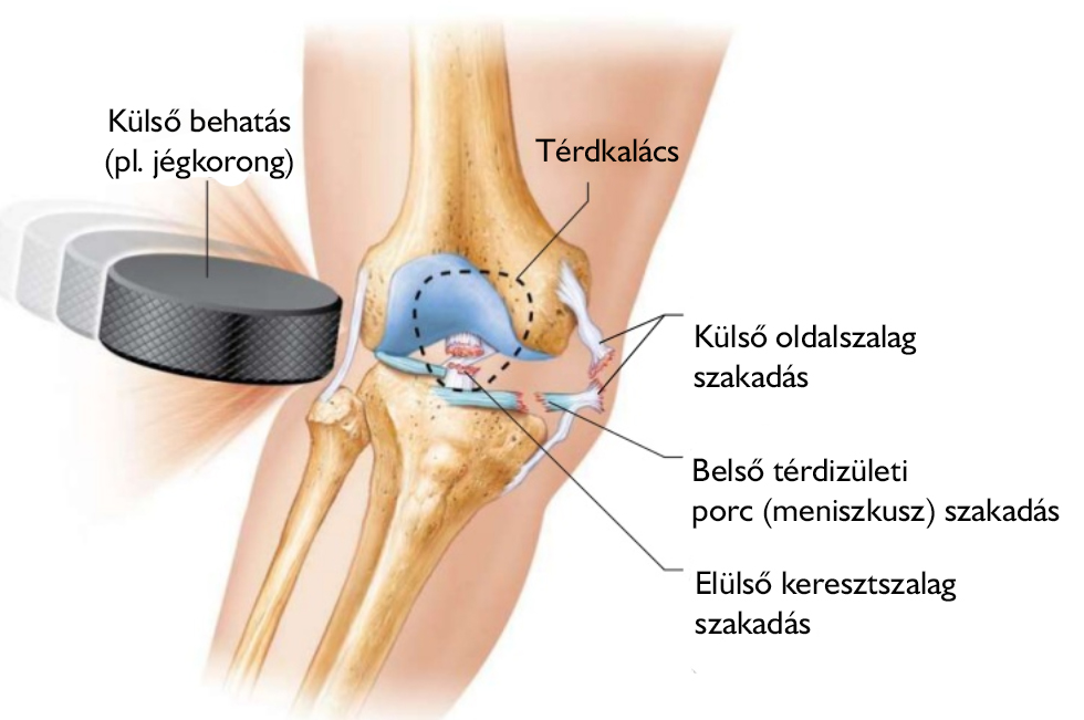térdízületi fájdalmak okozzák)