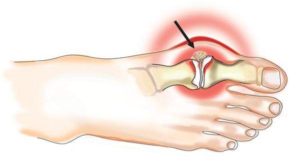kezelni a nagy lábujj ízületének gyulladását)