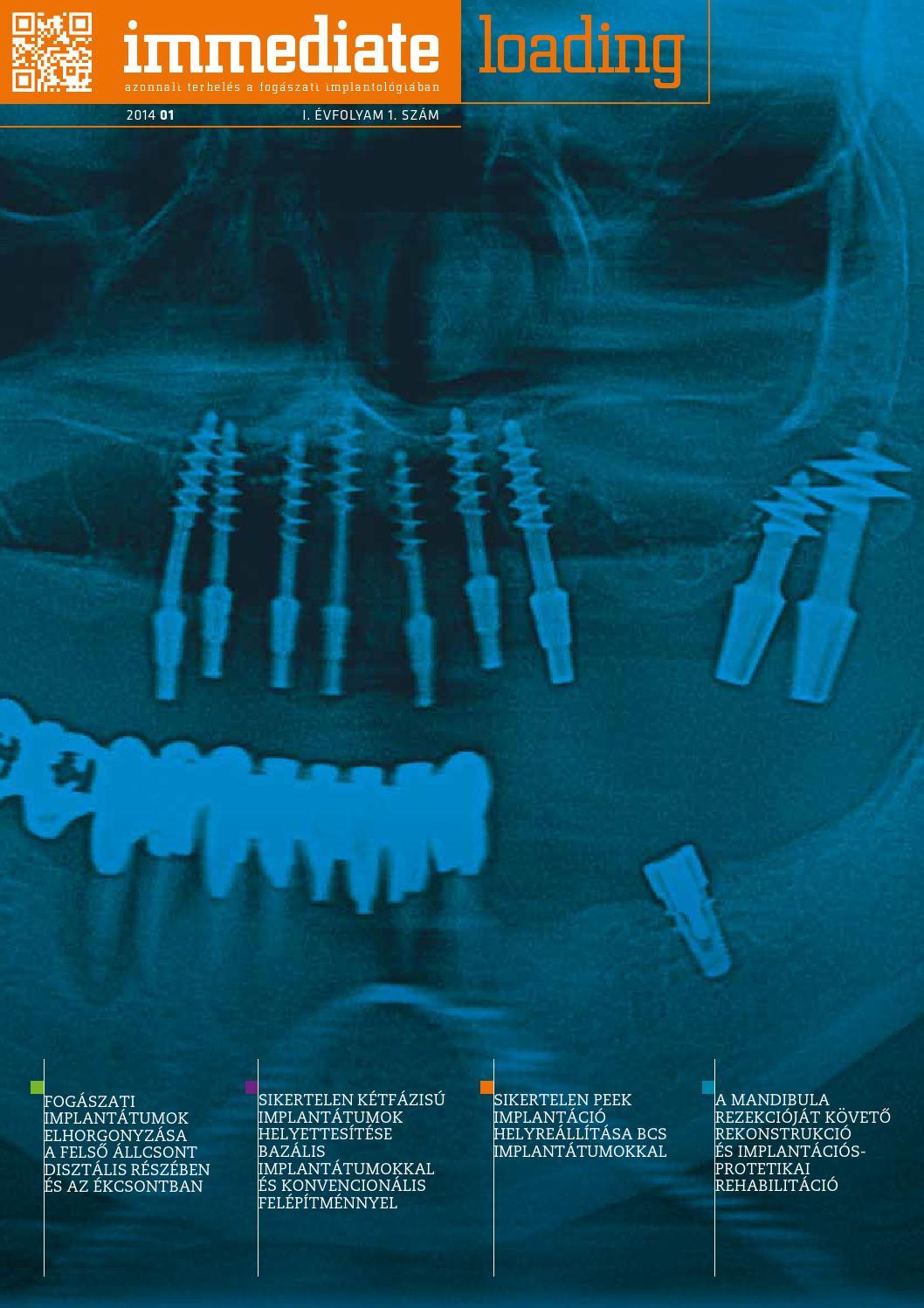 az osteomyelitis által bonyolult hamis ízület kezelése a csontok és az ízületek nagyon fájnak