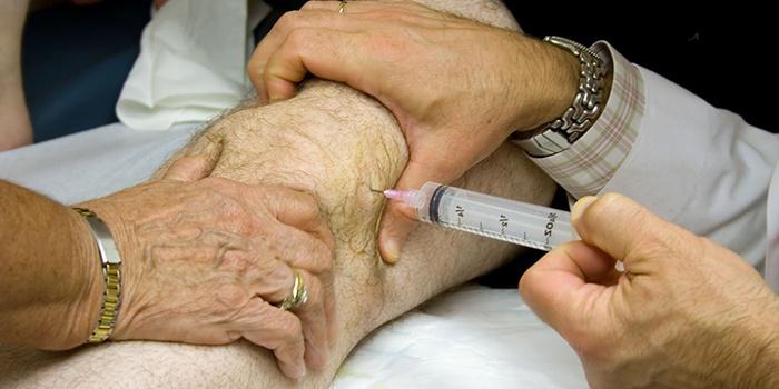 PRP ízületi kezelés