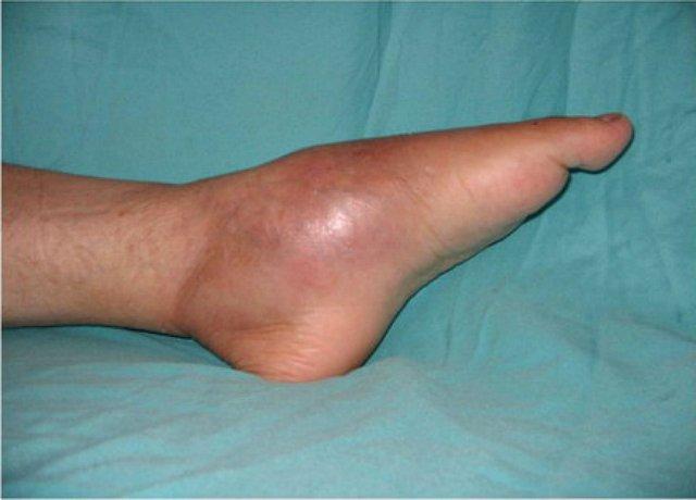 csípőízület osteomyelitis kezelése)