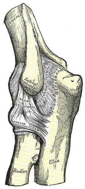 a könyök ízületének szalagfájdalma a térd meniszkuszának eltávolítása artrózisban