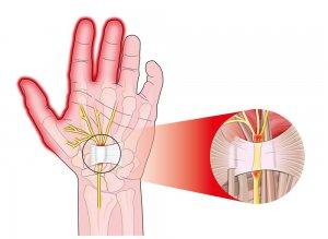 fáj a csukló és a kéz ízületei ízületi fájdalom késés előtt