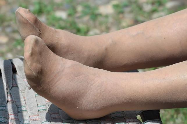 csőr infúziós kezelés fájdalom sérült csípő miatt
