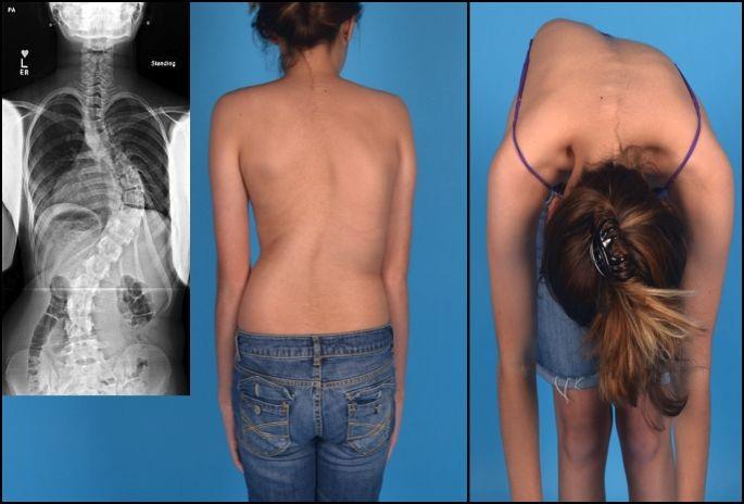 Lumbágó 13 oka, 7 tünete, 6 kezelési módja [teljes leírás]