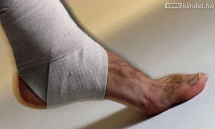 Sarokfájdalom kezelése lágylézerrel - Dr. Zátrok Zsolt blog