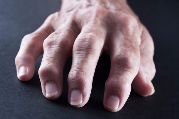 fájdalom a kéz kis ízületeiben annál jobb a rheumatoid arthritis kezelése
