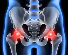 arthrosis kezelés orvosok fóruma könyökízület ízületi gyulladás