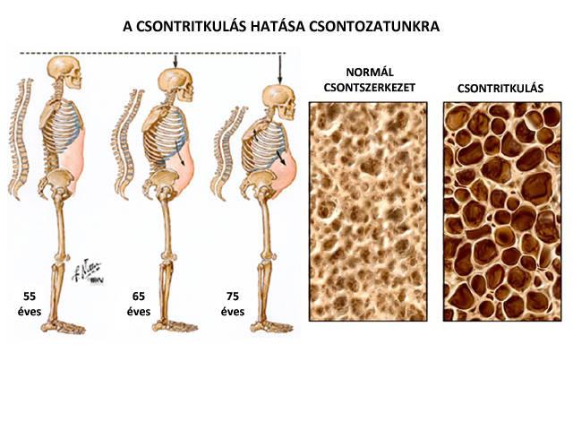 csigolyák közötti csontritkulás kezelésére szolgáló gyógyszerek