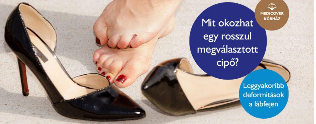 A kényelmetlen cipő következményei