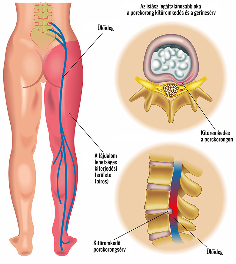 csípő ligamentosis hogyan kell kezelni)