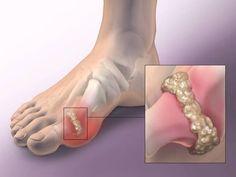 hogyan kezeljük a serdülőkori csípő dysplasiat a kéz arthrosisának kezelésére szolgáló módszerek
