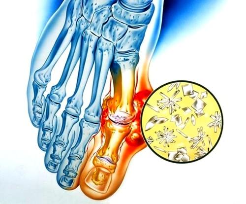 fájó ízületek kezelése a lábakban helyreállítási idő a térd megfeszülése után