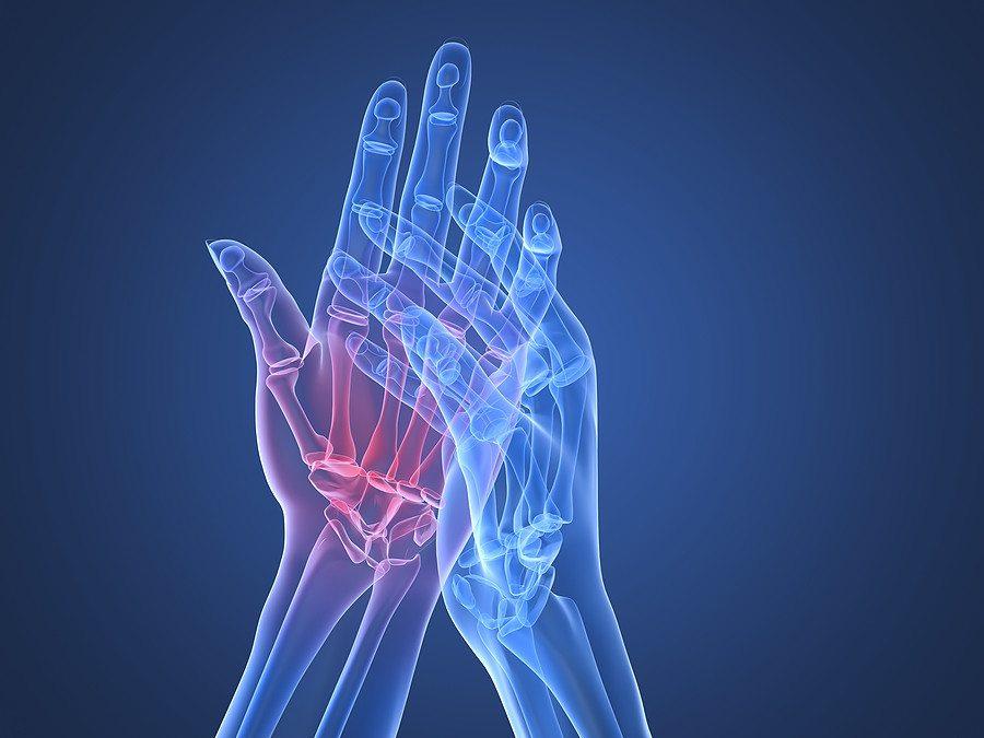 kézízületi gyulladás és kezelés