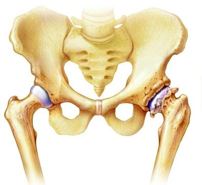 hogyan lehet eltávolítani a csípőízület fájdalmát fájó lábujjak artritisz kezelése