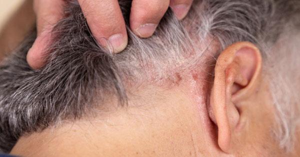 Pikkelysomor okozta izuleti gyulladas forum A pikkelysömör tünetei és kezelése