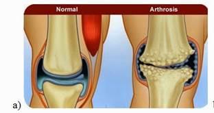 gyulladás a térd artrózisával
