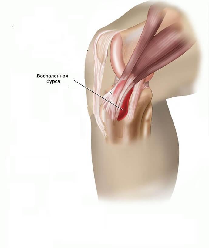 a térd bursitisének kezelése kenőcsrel