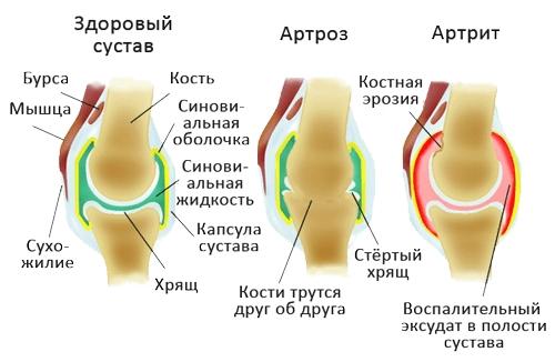 ízületi csontkészítmények)