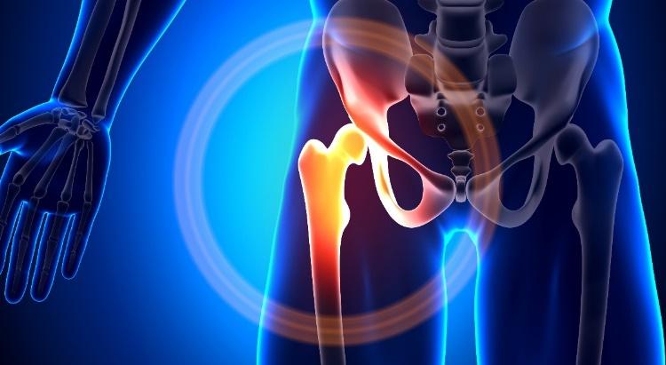 csípőfájás bursitis)