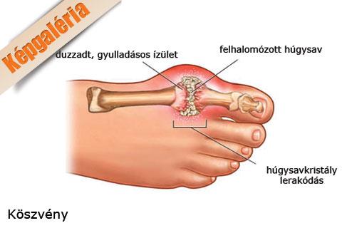 az ujj falának ízületének gyulladása