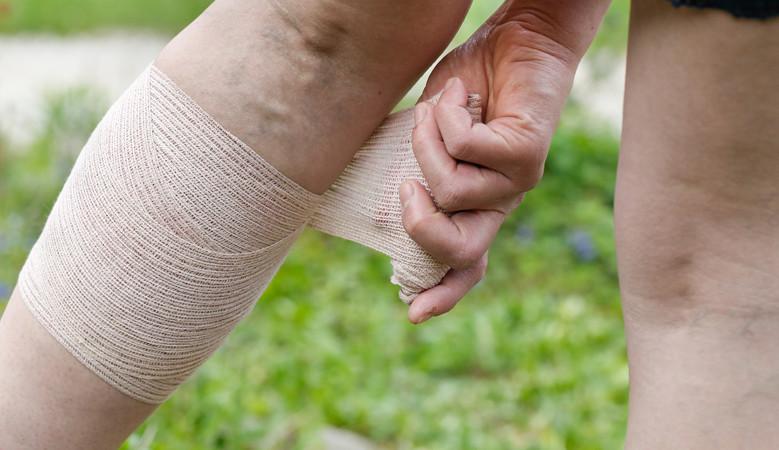 térdfájdalom véraláfutás után)