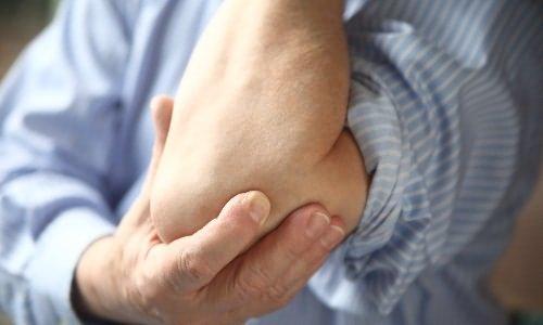 a könyökízületekben a kezek nagyon fájnak)