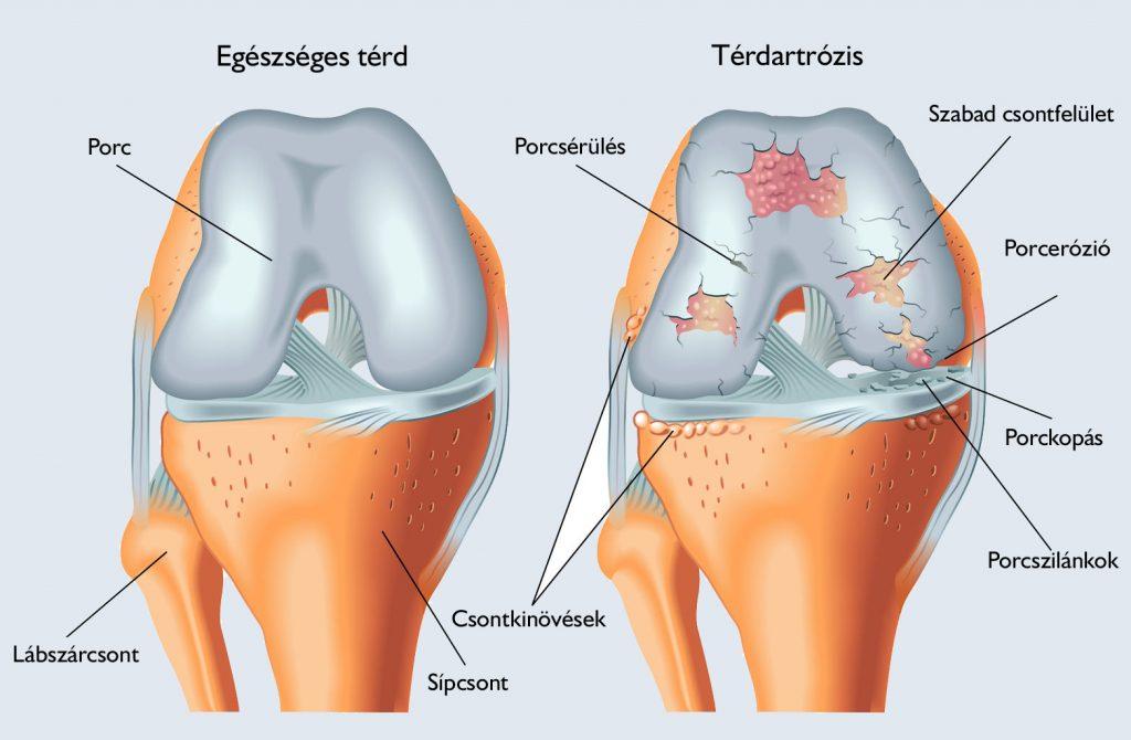 a térd artrózisának korai stádiuma)